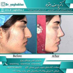 nose surgery (330)