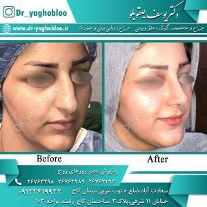 nose surgery (332)