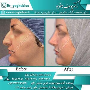 nose surgery (333)