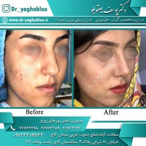 nose surgery (335)