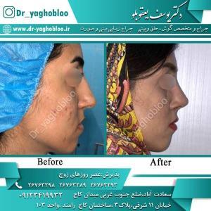 nose surgery (336)
