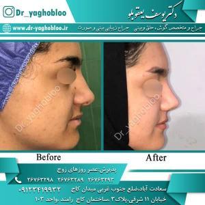 nose surgery (344)