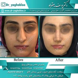 nose surgery (348)