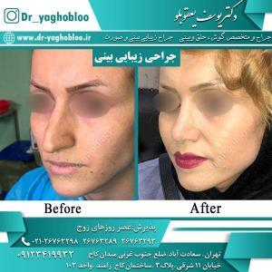 nose surgery (35)