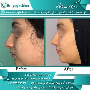 nose surgery (350)