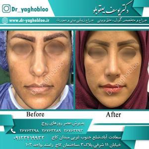 nose surgery (354)