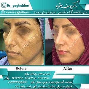 nose surgery (355)