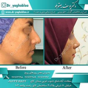 nose surgery (356)