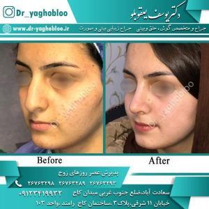 nose surgery (358)