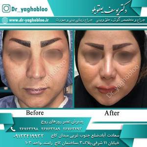 nose surgery (359)