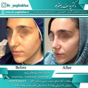 nose surgery (363)