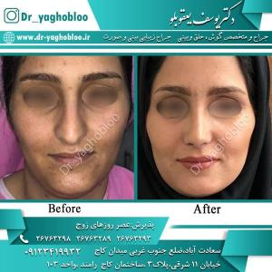 nose surgery (372)