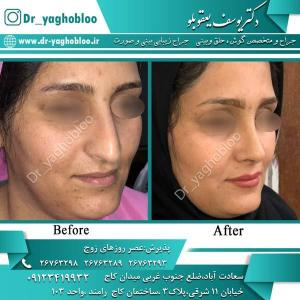 nose surgery (373)