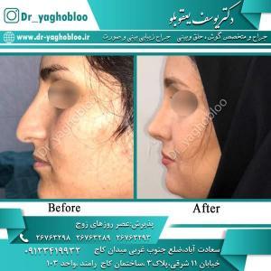 nose surgery (374)