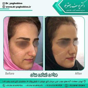 nose surgery (376)