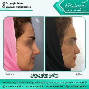 nose surgery (378)
