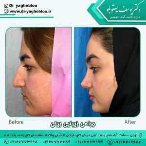 nose surgery (379)