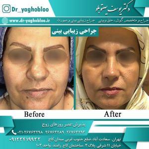 nose surgery (39)