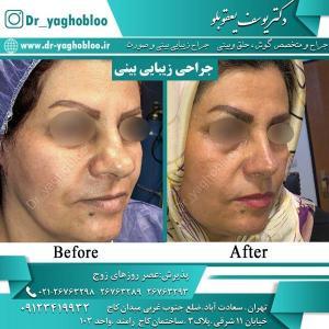 nose surgery (40) (1)