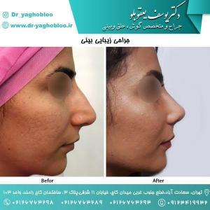 nose surgery (42) (1)