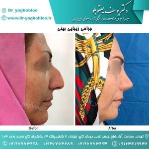 nose surgery (43) (1)