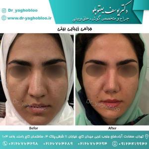 nose surgery (46)