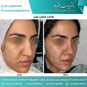 nose surgery (47) (1)