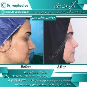 nose surgery (5)