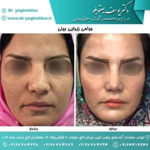 nose surgery (50)