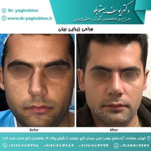 nose surgery (52)