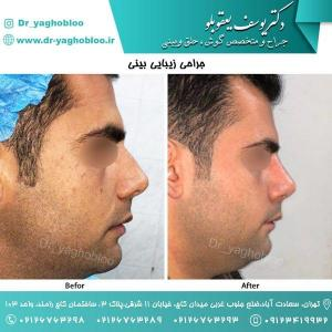 nose surgery (53)