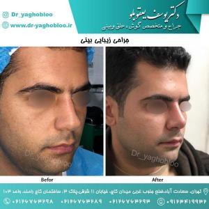 nose surgery (54)
