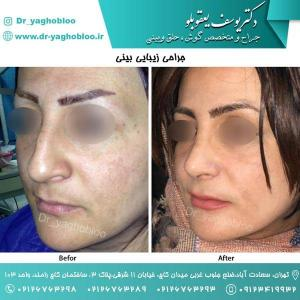 nose surgery (56)