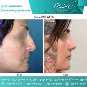 nose surgery (57) (1)