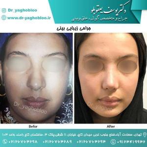 nose surgery (58) (1) (1)