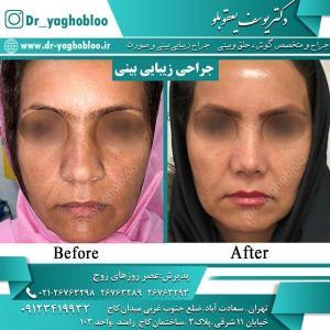 nose surgery (6)