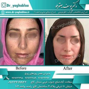 nose surgery (61) (1) (1) (1)