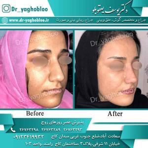 nose surgery (64)