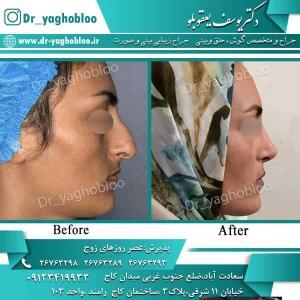 nose surgery (67) (1)