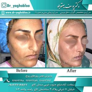 nose surgery (68) (1)