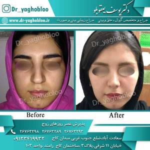 nose surgery (69) (1)