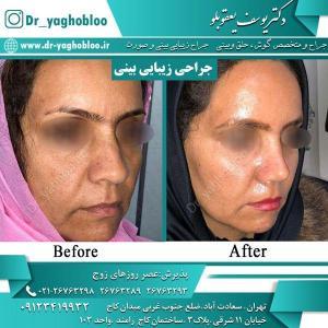 nose surgery (7)