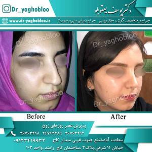 nose surgery (70) (1)