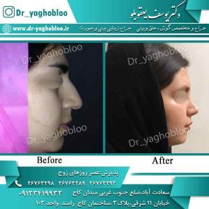 nose surgery (71) (1)