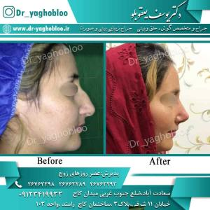 nose surgery (75)