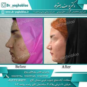 nose surgery (78)