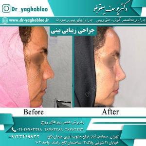 nose surgery (8)