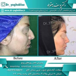 nose surgery (81)