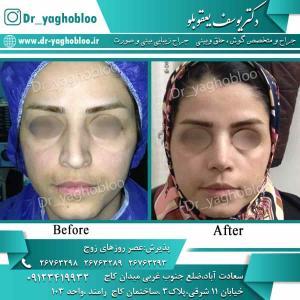 nose surgery (82)