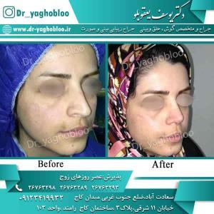 nose surgery (84)